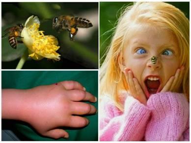 Если ребёнка ужалила пчела